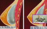 Meme Protezinin Koltuk Altından Koyulmasının Dezavantajları Nelerdir